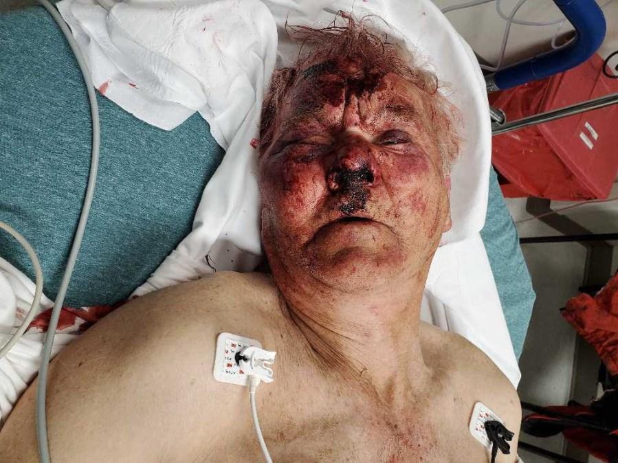 Jason Jones after the assault